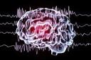 Anticoncepcional e Epilepsia